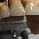 Punte ceramica-4