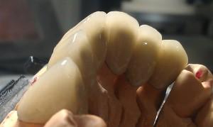 punte ceramica 2